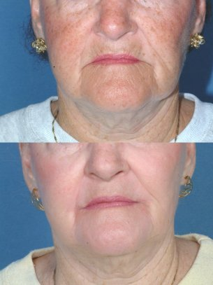 Full Face Rejuvenation - Before And After Photos: Female (frontal view)