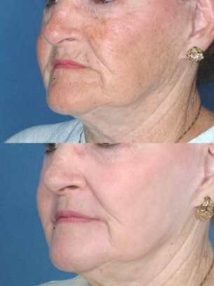 Full Face Rejuvenation - Before And After Photos: Female patient (left side, oblique view)