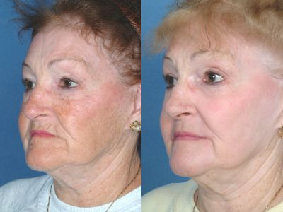 Full Face Laser Resurfacing. Photo - Before and After Treatment: Female (oblique view)