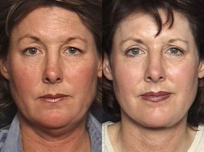 Full Face Laser Resurfacing. Photo - Before and After Treatment: Female patient (frontal view)