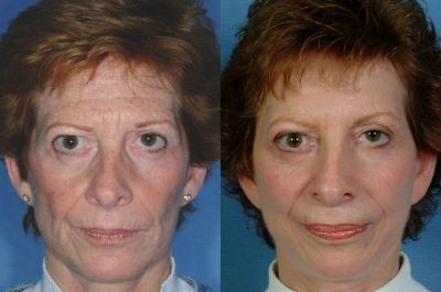Full Face Laser Resurfacing. Photo - Before and After Treatment: Woman (frontal view)
