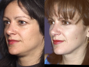 LOWER FACE | Liposculpture | Before and After Treatment Photos: Female (left side, oblique view)