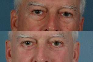 EYES - Lower Blepharoplasty - Before and After Treatment Photos: Male (frontal view)