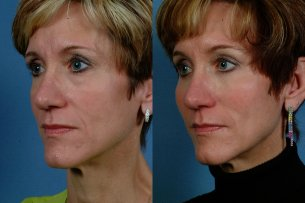 MIDDLE FACE | Before and After Treatment - Photos: Female (oblique view)