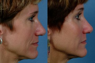 MIDDLE FACE | Before and After Treatment - Photos: Female (right side view)