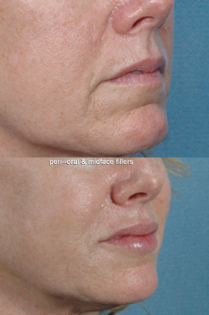 MOUTH AND LIPS | Photos: Before and After Treatment - female (oblique view)