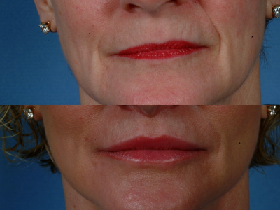 GALLERY: Mouth and Lips - Before and After Photos: - Female (frontal view)