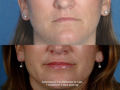 GALLERY: Mouth and Lips - Before and After Photos: - Female patient (frontal view)