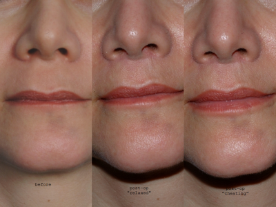 GALLERY: Mouth and Lips - Before and After Photos: - Woman patient (frontal view)