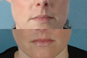 images Mouth and Lips before and after facelift procedures