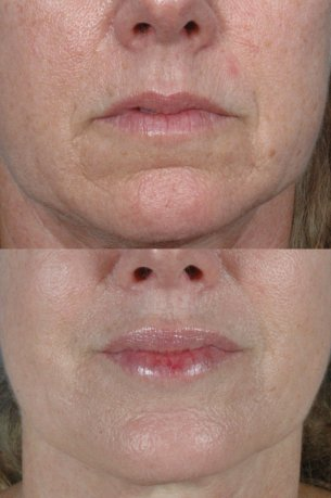 MOUTH AND LIPS | Before and After Treatment - Female patient (frontal view)