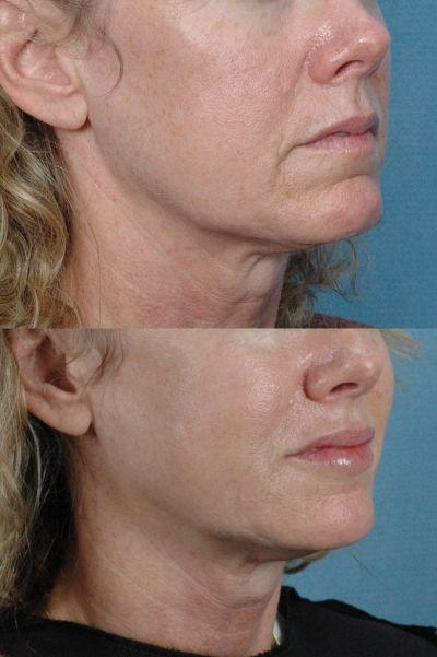GALLERY: Mouth and Lips - Before and After Photos: - Woman (right side, oblique view)