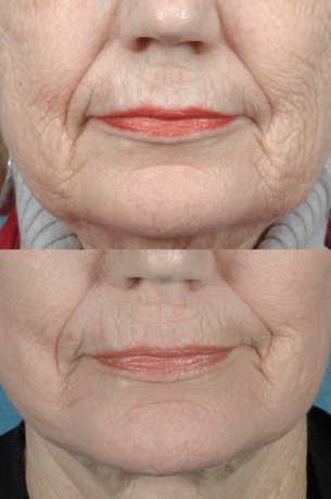 Perioral Laser Resurfacing - Before and After Photos: Female (frontal view)