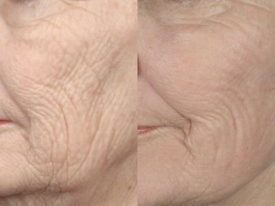 GALLERY: Mouth and Lips - Before and After Photos: - Woman (left side, oblique view)