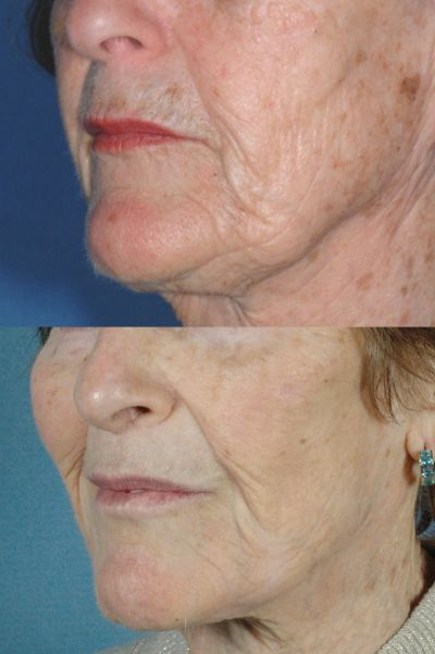 GALLERY: Mouth and Lips - Before and After Photos: - Female patient (left side, oblique view)