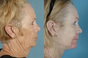 MOUTH AND LIPS. Perioral Laser Resurfacing - Before and After Photos: Female (right side view)
