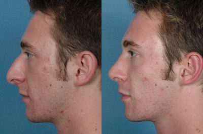 Gallery: Nose - Septorhinoplasty - Before and After Treatment Photos: Male (left side view)