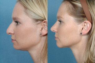 Before and After Treatment Photo - Nose (female, left side view)