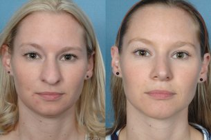 Before and After Treatment Photo - Nose (female, frontal view)