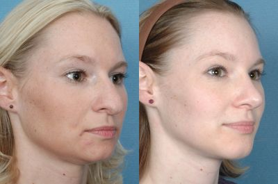 Gallery: Nose - Septorhinoplasty - Before and After Treatment Photos: Female (right side, oblique view)