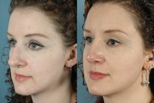 NOSE |Septorhinoplasty| Before and After treatment - Photo: Female (oblique view)