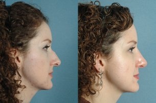 NOSE |Septorhinoplasty| Before and After treatment - Photo: Female (right side view)