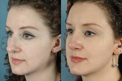 Gallery: Nose - Septorhinoplasty - Before and After Treatment Photos: Female patient (left side, oblique view)