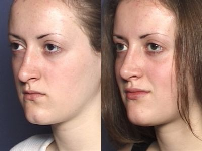 Gallery: Nose - Septorhinoplasty - Before and After Treatment Photos: Woman (left side, oblique view)