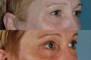 Upper Blepharoplasty | Eyes | Photos: Before and After Treatments - Female (oblique view)