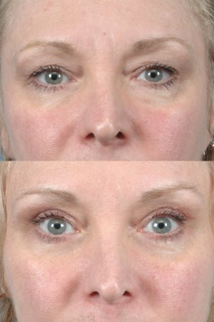 Upper Blepharoplasty | Eyes | Photos: Before and After Treatments - Female patient (frontal view)