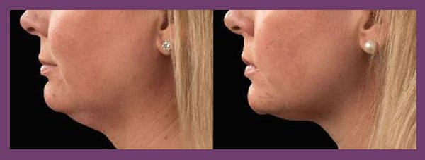 female patient before and after Coolsculpting for the Chin
