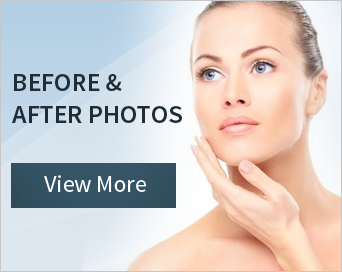 Non Surgical Chin Augmentation Champaign Chin Fillers Il