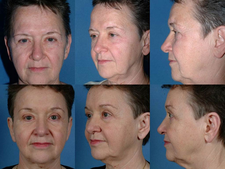 FOREHEAD AND BROWS: Before and After Treatment Photos: Female patient (frontal, oblique and side - views)