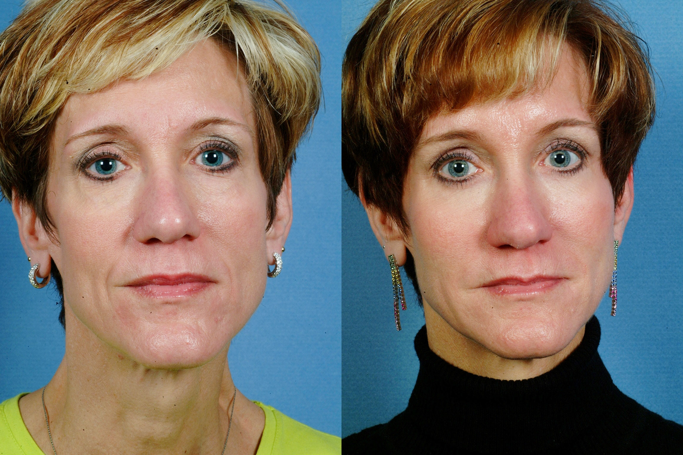 MIDDLE FACE | Before and After Treatment - Photos: Female (frontal view)