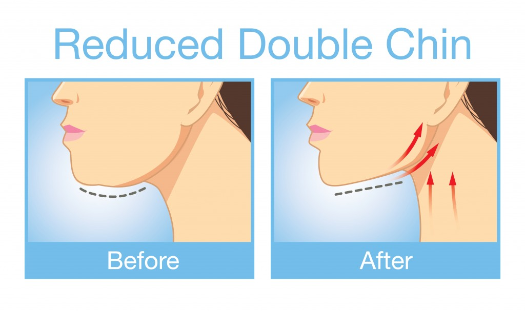Reduced Double Chin Before and After