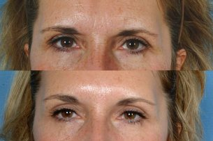 EYES: Botox Cosmetic - Photo Before and After Treatment Female (frontal view)