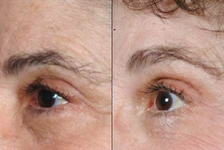 EYES GALLERY: Before and After Photos: Botox Cosmetic - Female patient (left side, oblique view)