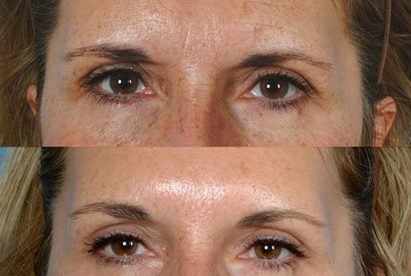 EYES GALLERY: Before and After Photos: Botox Cosmetic - Woman (frontal view)