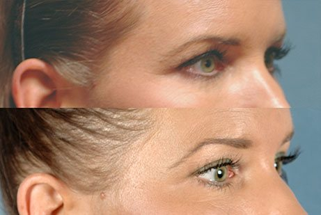 EYES GALLERY: Before and After Photos: Ultherapy - Female patient (right side, oblique view)