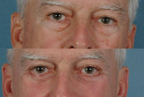 EYES GALLERY: Before and After Photos: Lower Blepharoplasty - Male (frontal view)