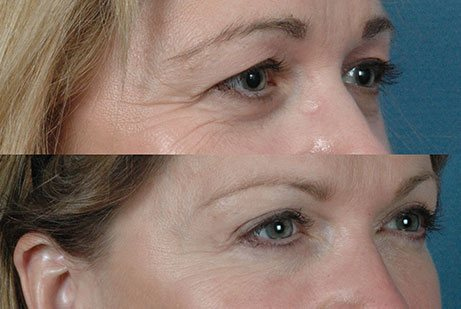 EYES GALLERY: Before and After Photos: Upper and Lower Blepharoplasty - Female (right side, oblique view)