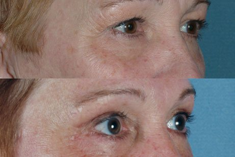 EYES GALLERY: Before and After Photos: Upper Blepharoplasty - Female patient (right side, oblique view)