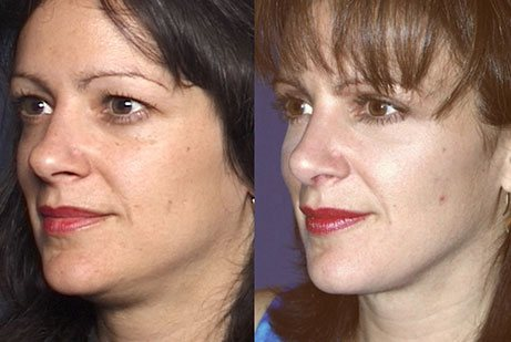 EYES GALLERY: Before and After Photos: Upper Blepharoplasty - Woman (left side, oblique view)