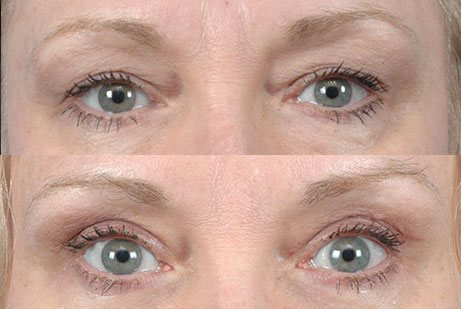 EYES GALLERY: Before and After Photos: Upper Blepharoplasty - Woman patient (frontal view)