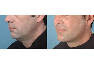 Featured Gallery: Surgical Facial Contouring|Before and After Photos| - Male (left side, oblique view)